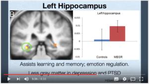 Hippocampe gauche et méditation pleine conscience