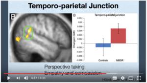 Carrefour temporo-pariétal : matière grise augmentée par la méditation