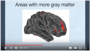 Matière grise du cerveau: Impacts de la méditation pleine conscience et du yoga